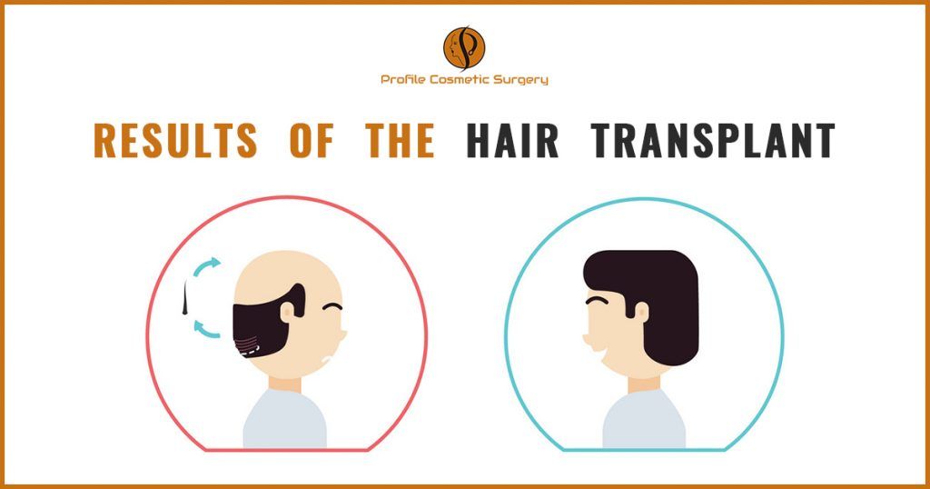 Results of the hair transplant Ludhiana, Punjab