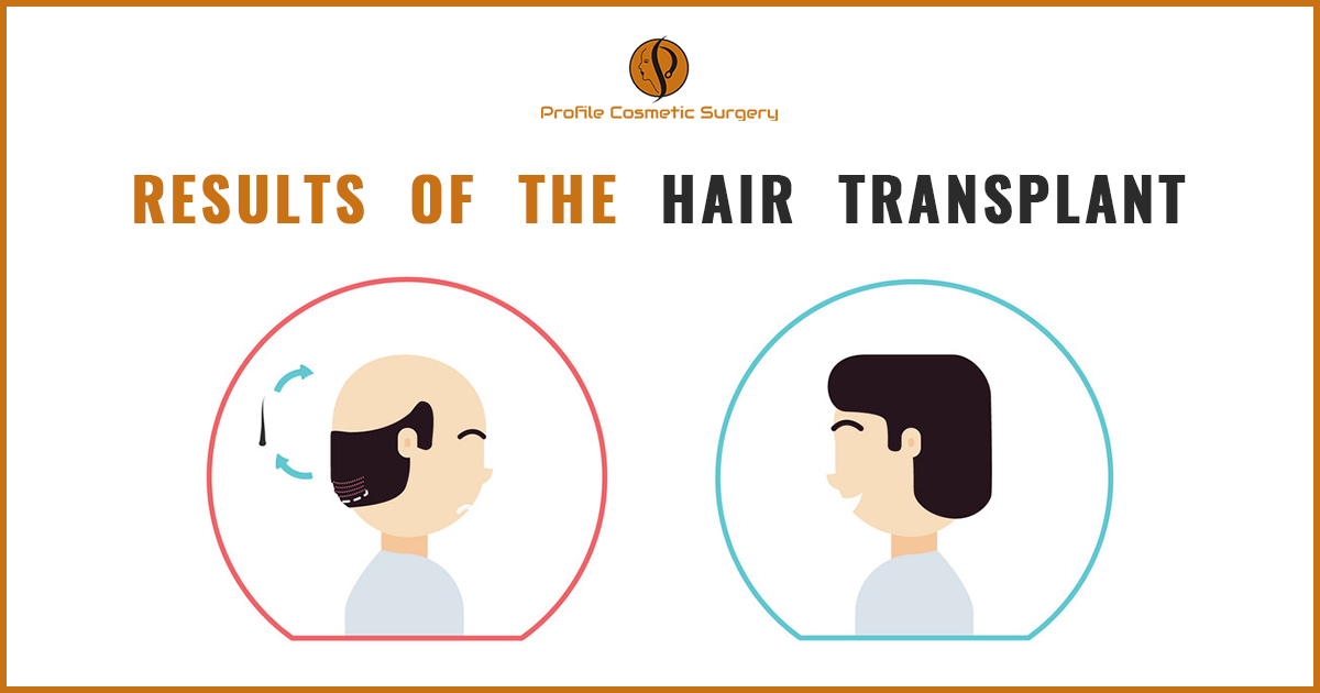 Is it true that the results of the hair transplant treatment look natural?