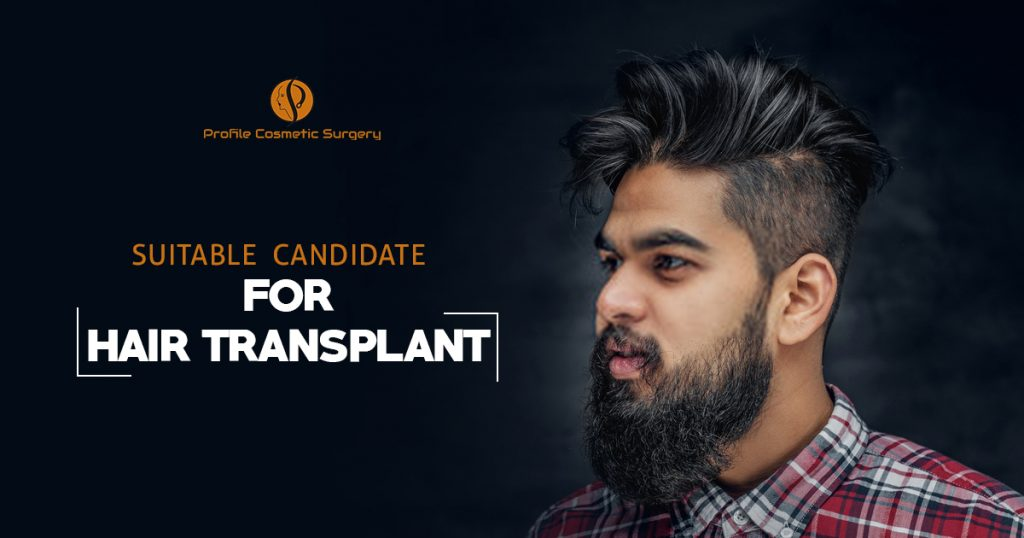 Suitable candidate for Hair Transplant