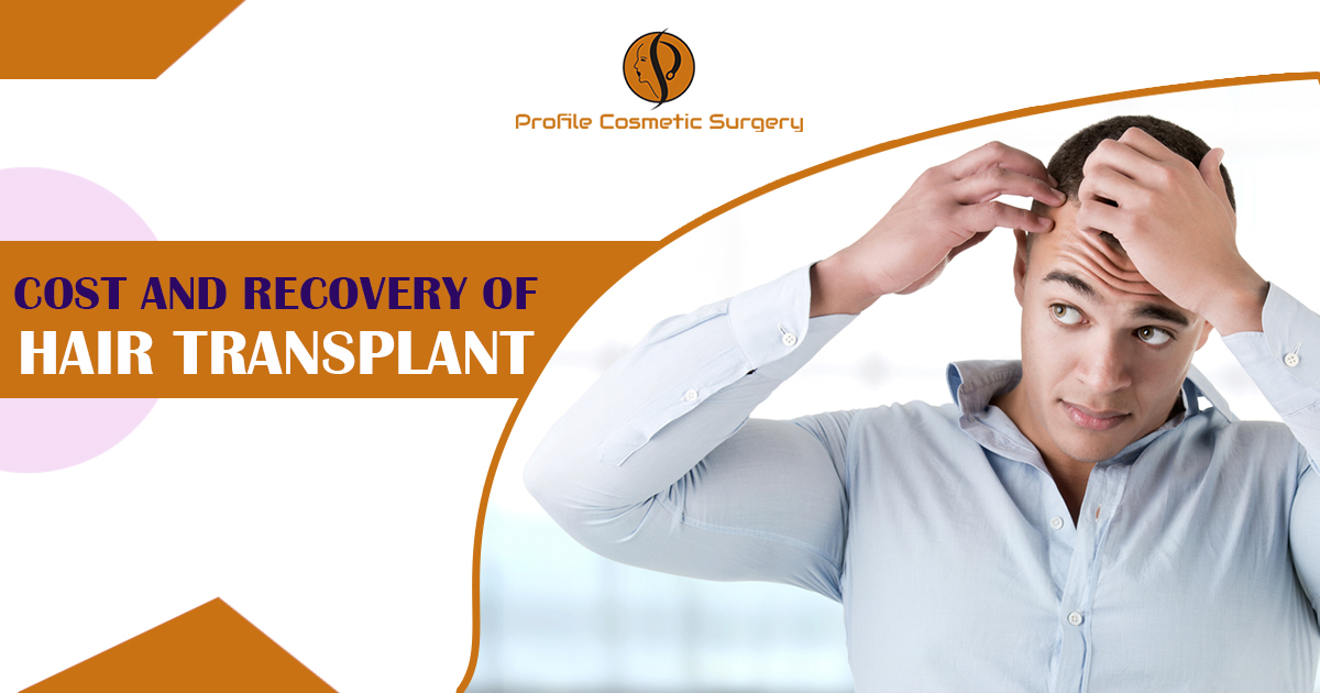 What is a Hair transplant and explain the cost & recovery tips of hair transplantation?