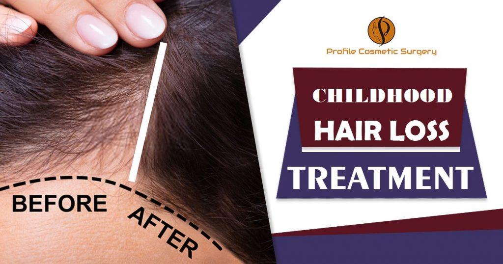 Childhood Hair Loss
