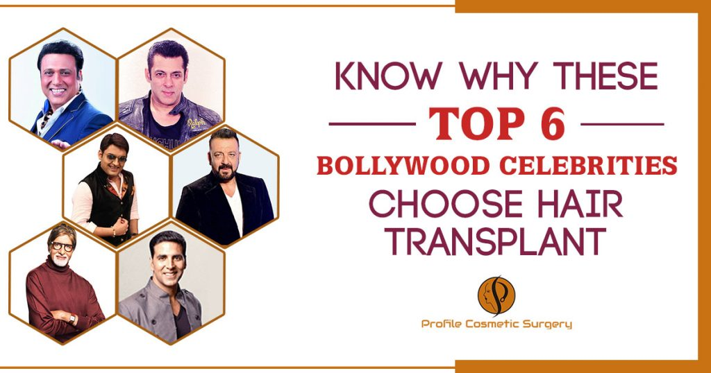 Know Why These Top 6 Bollywood Celebrities choose Hair Transplant