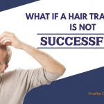 What if a hair transplant is not successful Punjab