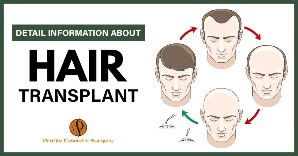 Detail information about Hair Transplant