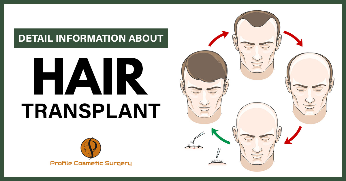 Explain the hair transplant methods, cost, and what are the final results?