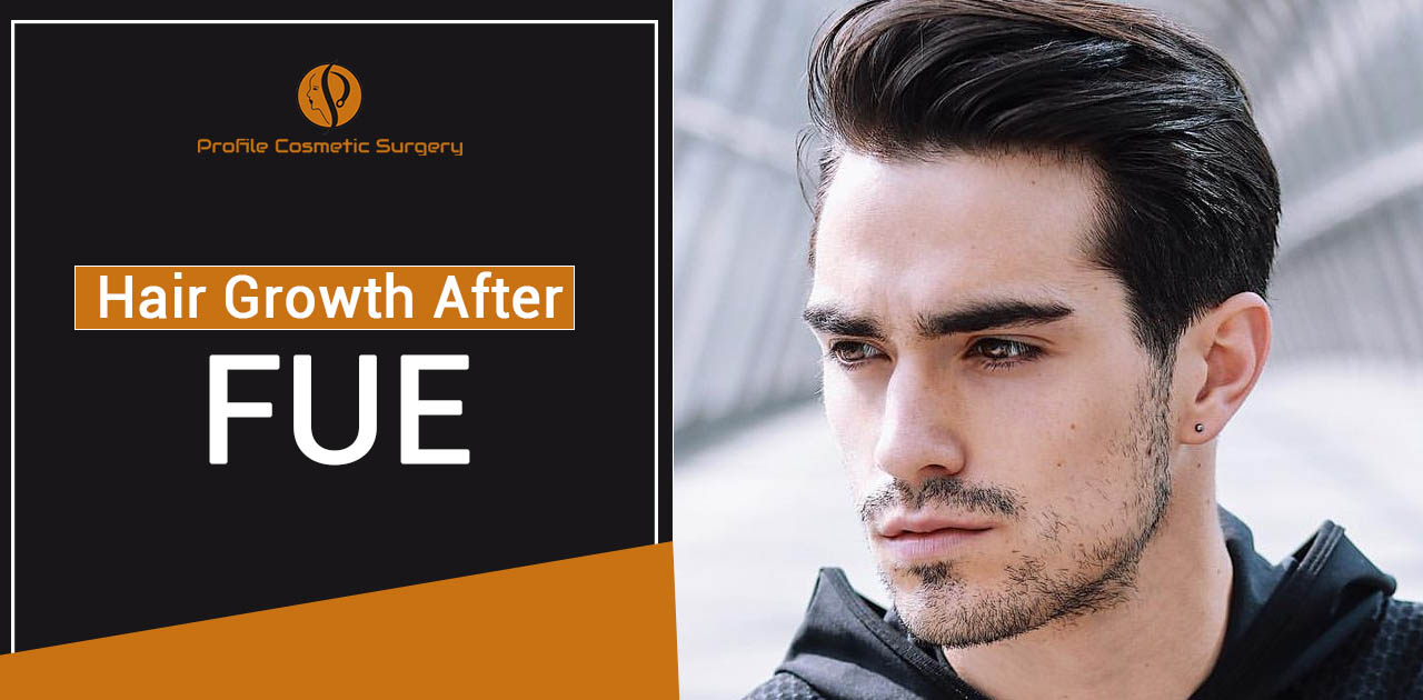 Everything you need to Know about hair growth after FUE hair transplant