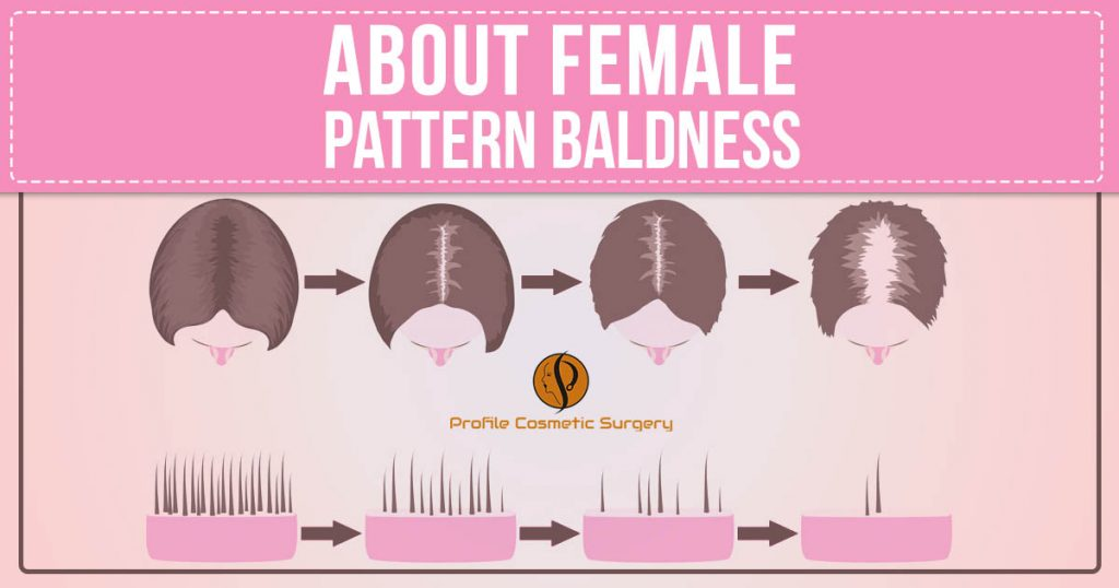 about female pattern baldness