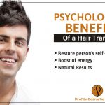 Psychological Benefits of a Hair Transplant