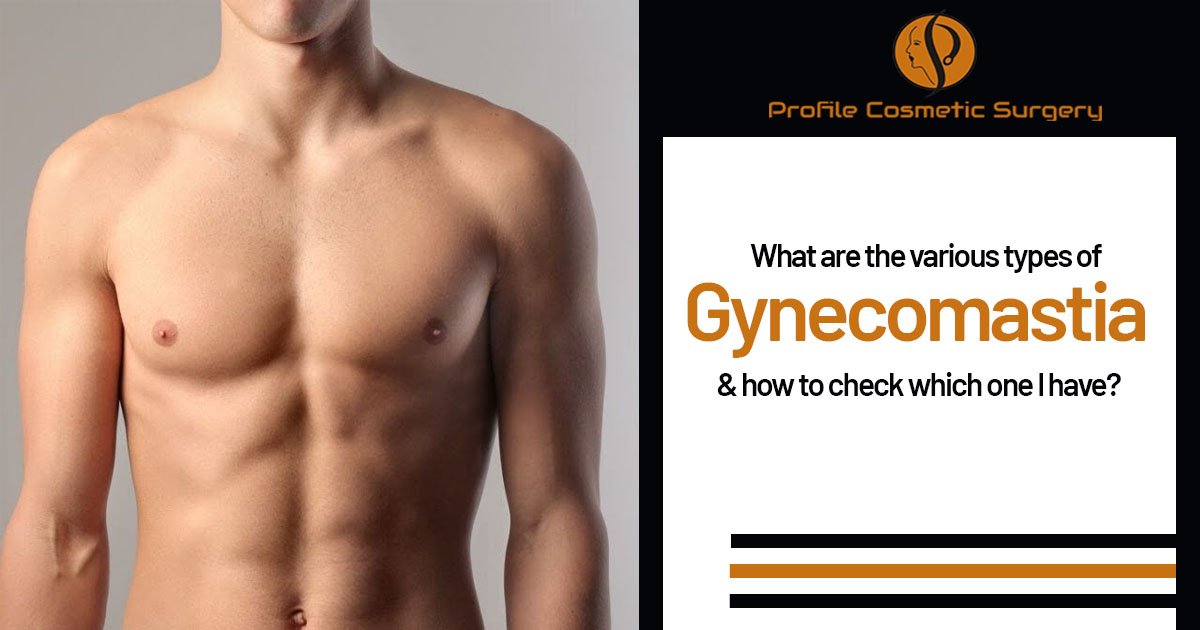 What are the various types of Gynecomastia and how to check which one I have?