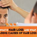 What is hair loss and what are the leading causes of hair loss problems