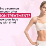 Is-scarring-a-common-phenomenon-after-liposuction-treatment--Do-these-scars-fade-away-with-time