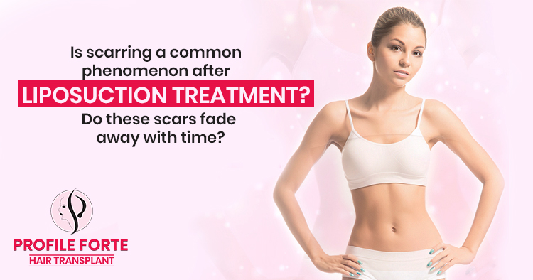 Is scarring a common phenomenon after liposuction treatment?