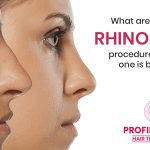 What are the types of rhinoplasty procedures and which one is best for me