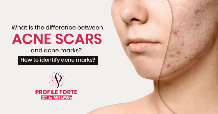 What is the difference between Acne scars and acne marks? How to identify acne marks?