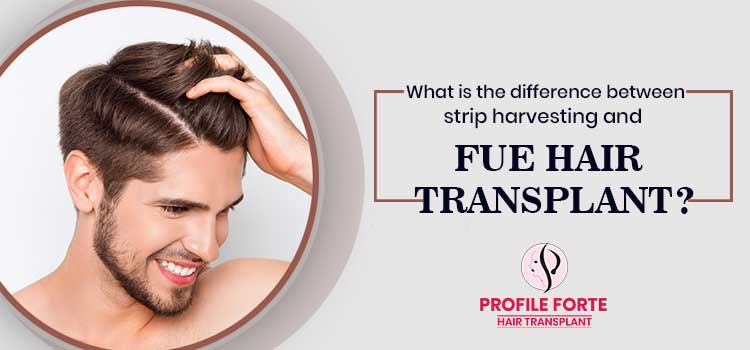 What is the difference between strip harvesting and FUE hair transplant?