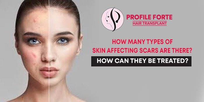 How many types of skin affecting scars are there How can they be treated