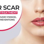 Laser scar removal treatment- Nature, Recovery period, Cost and Preventions