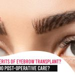 What are the merits of eyebrow transplant How to do post-operative care