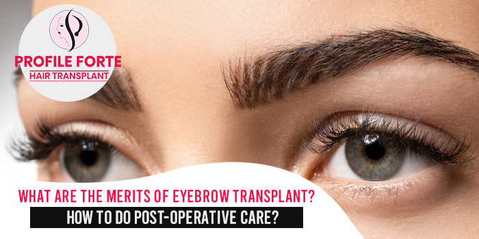 What are the merits of eyebrow transplant?  How to do post-operative care?