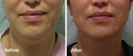 FaceTite Procedure Treatment and Cost in Ludhiana, Punjab, India