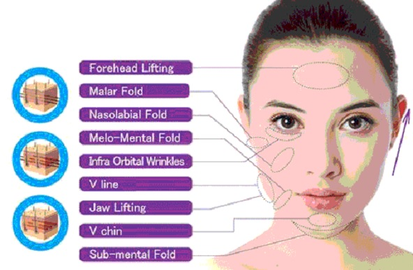 Thread facelift Non Surgical and Cost in Ludhiana, Punjab, India