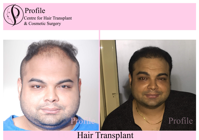 Dr Amit