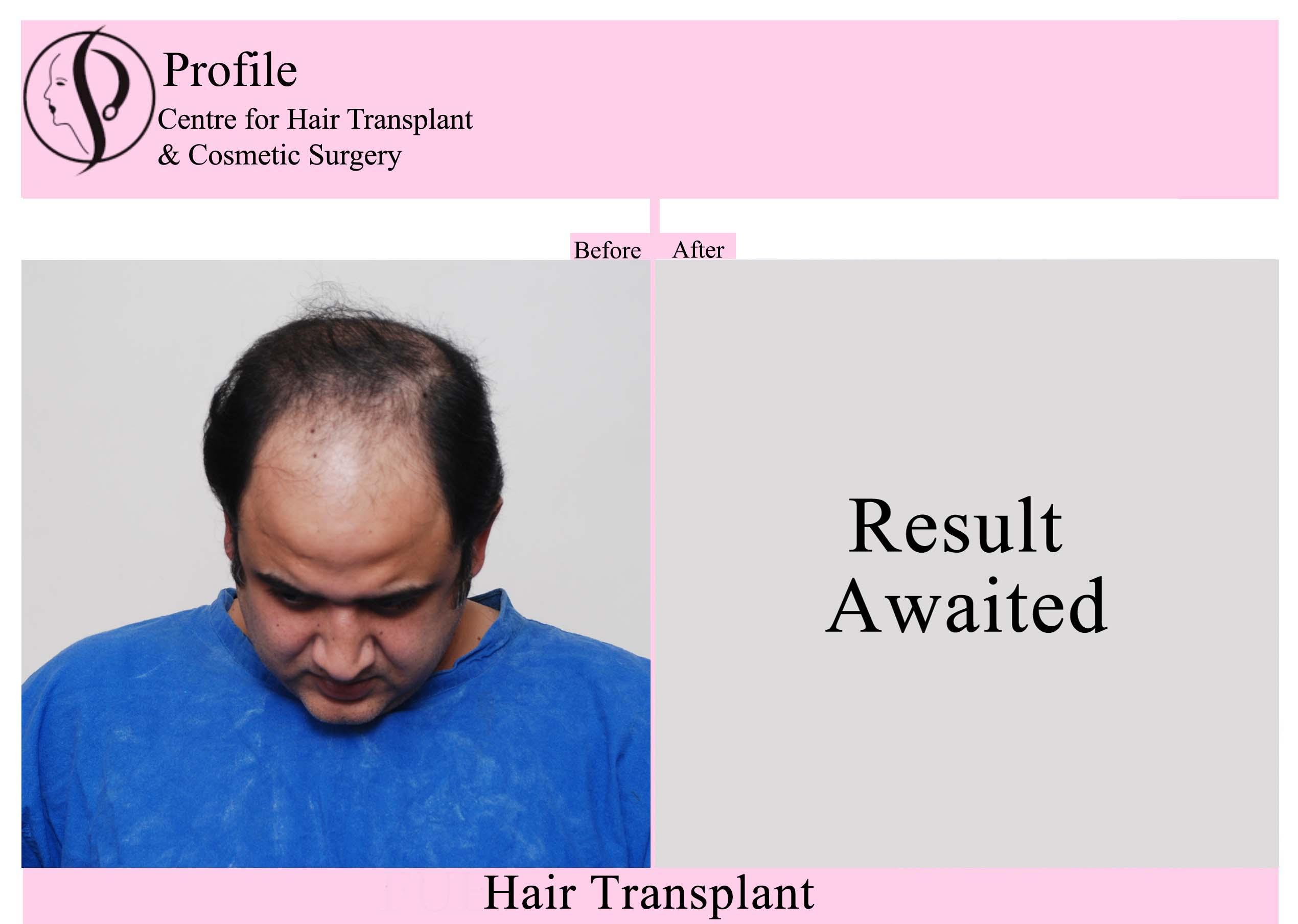 Dr. Amit Puri