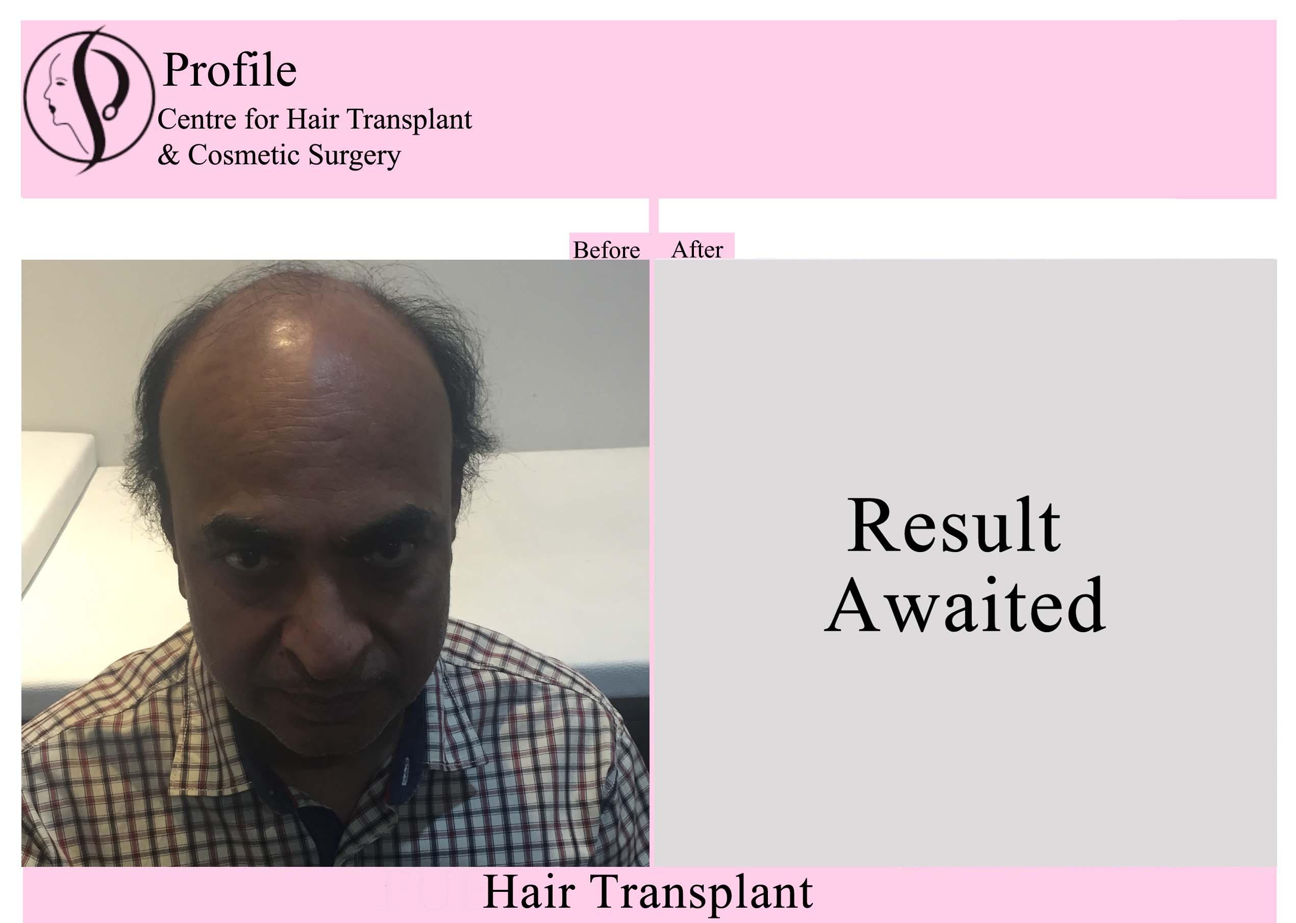 Dr. Barnala
