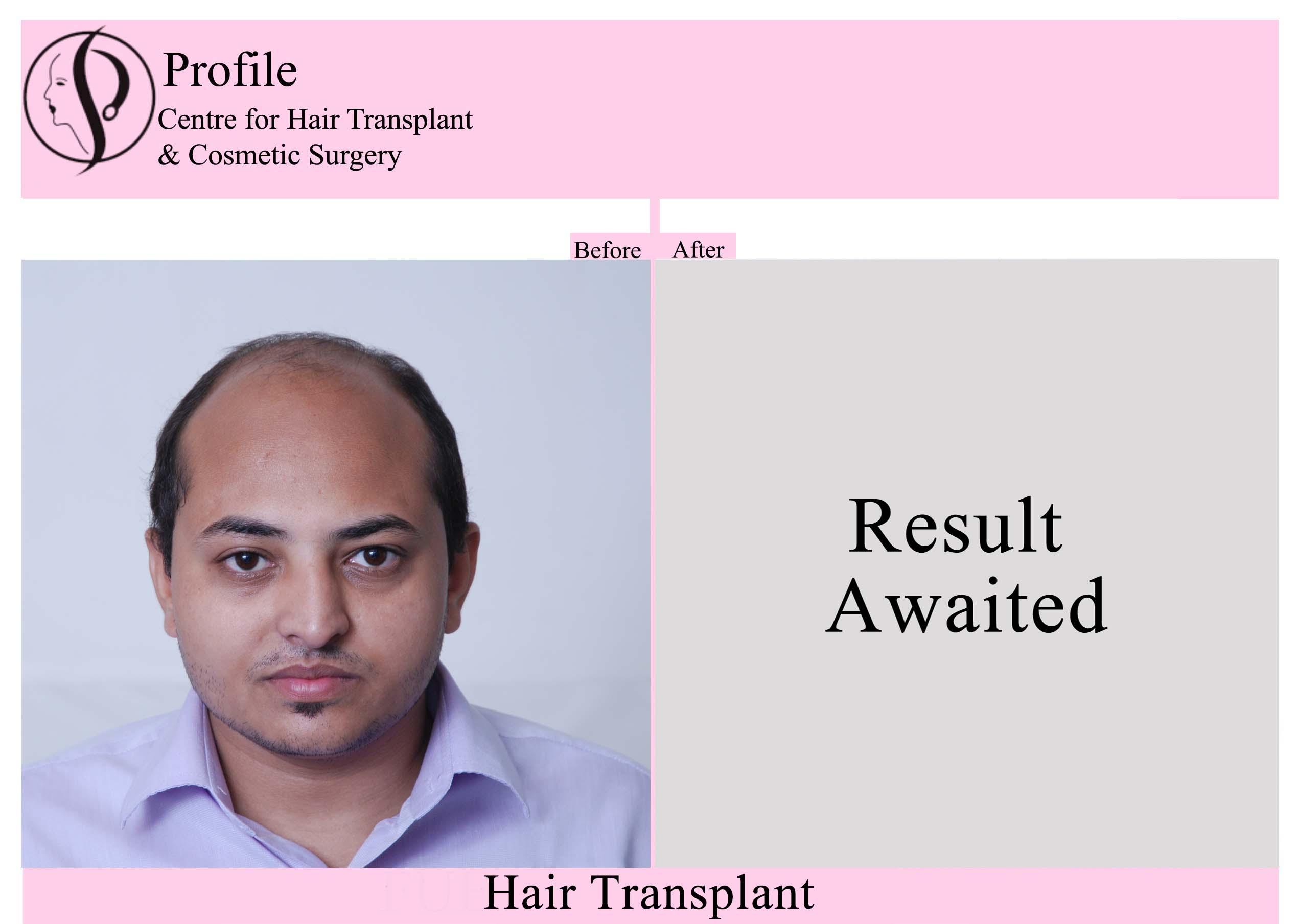 Dr. Devendra K Gupta