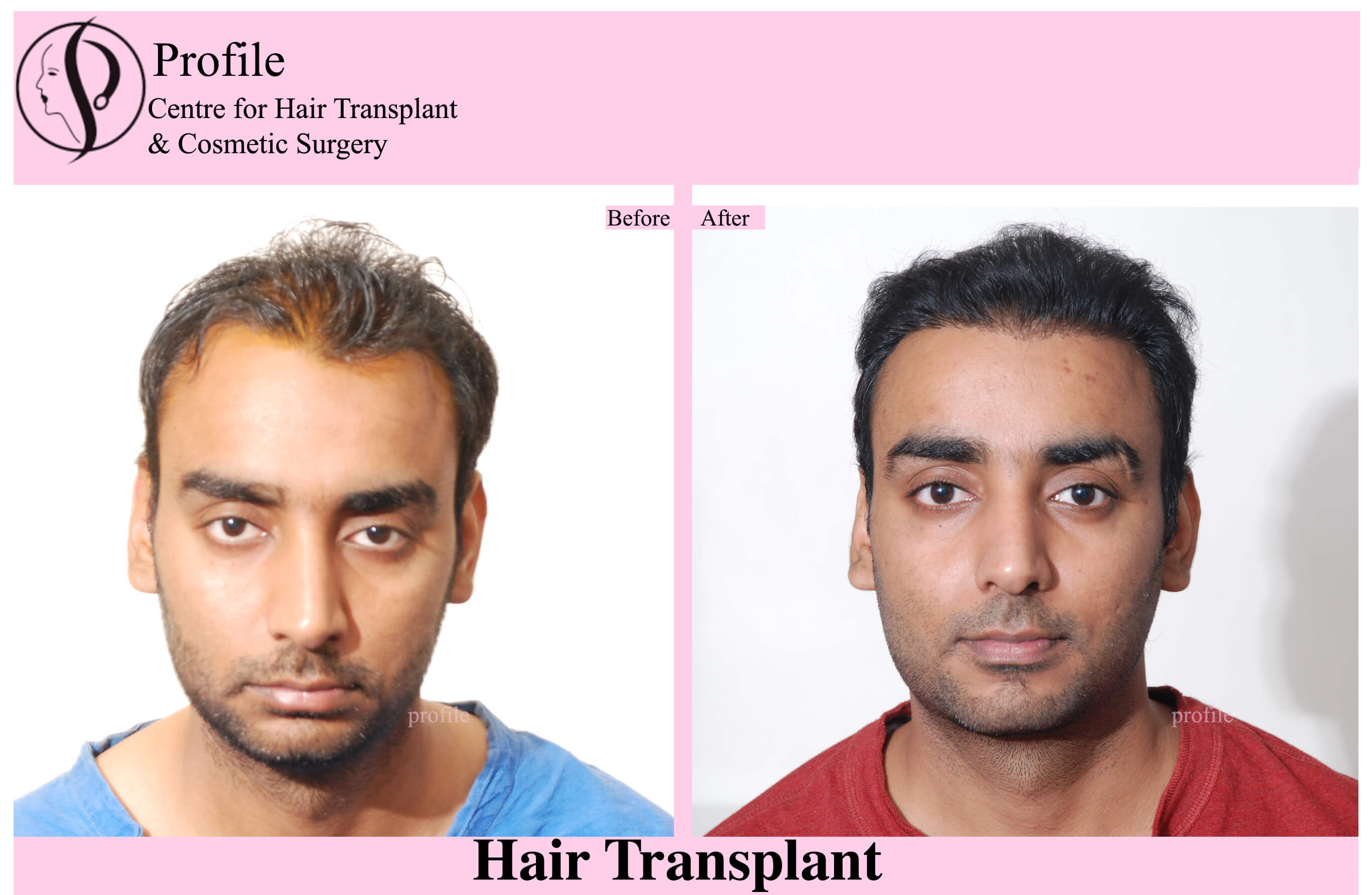 Dr. Harinder Pal Singh