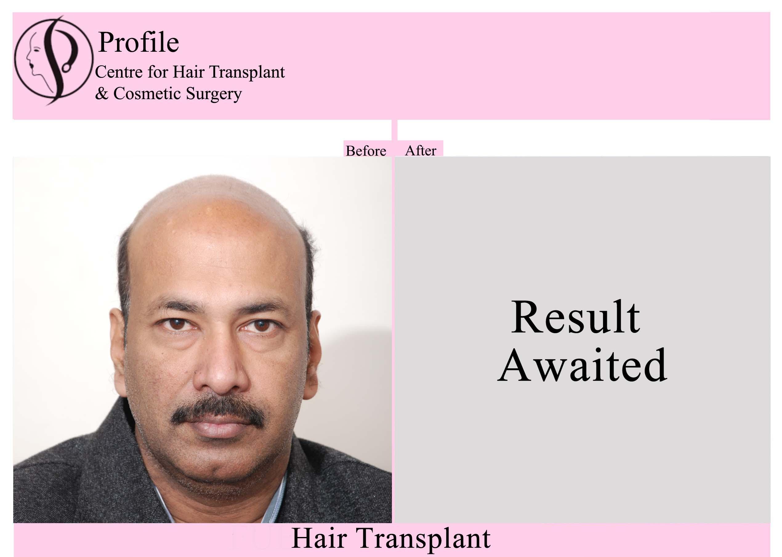 Dr. Parshotam Jindal