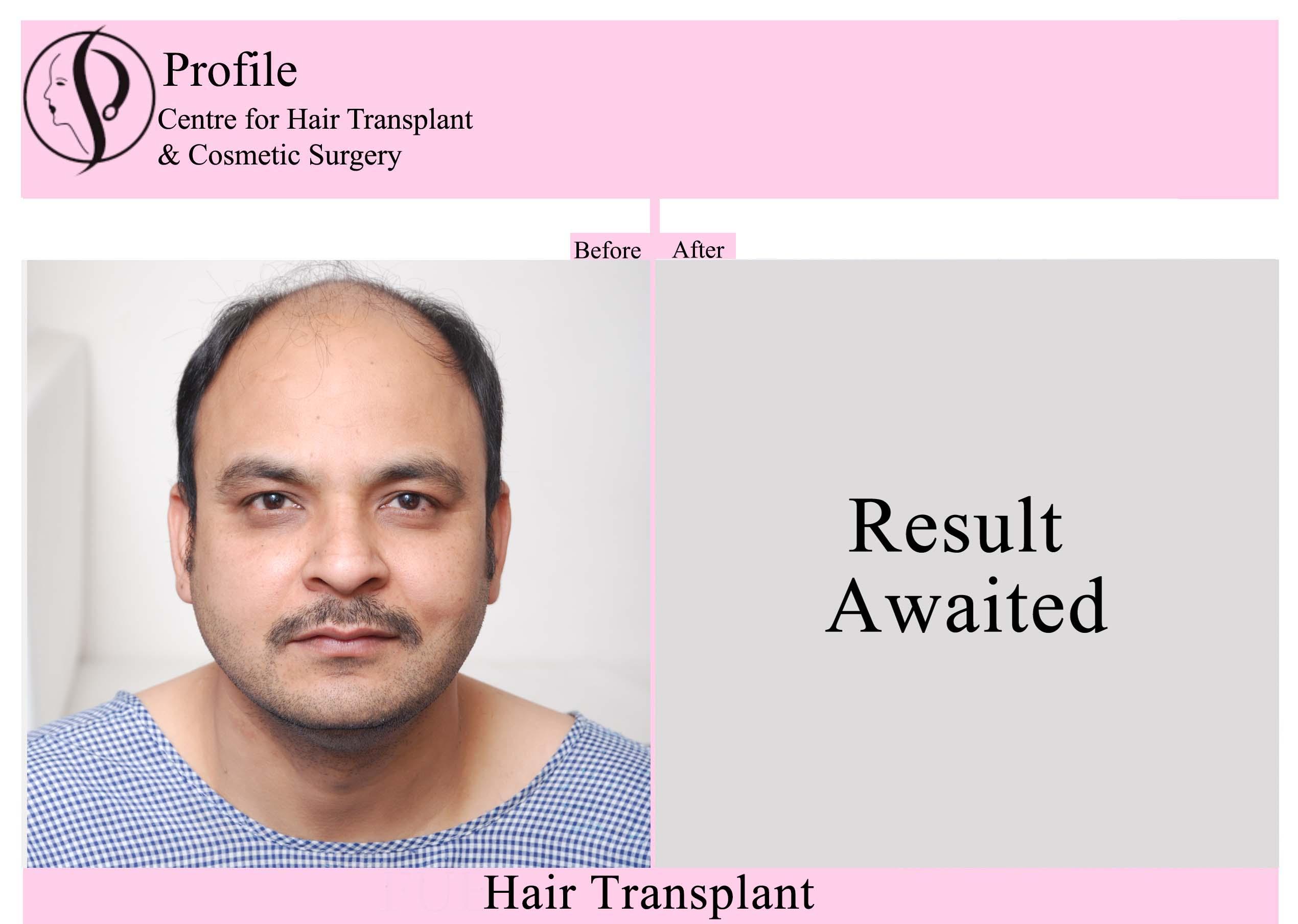 Dr. Rajan Sood