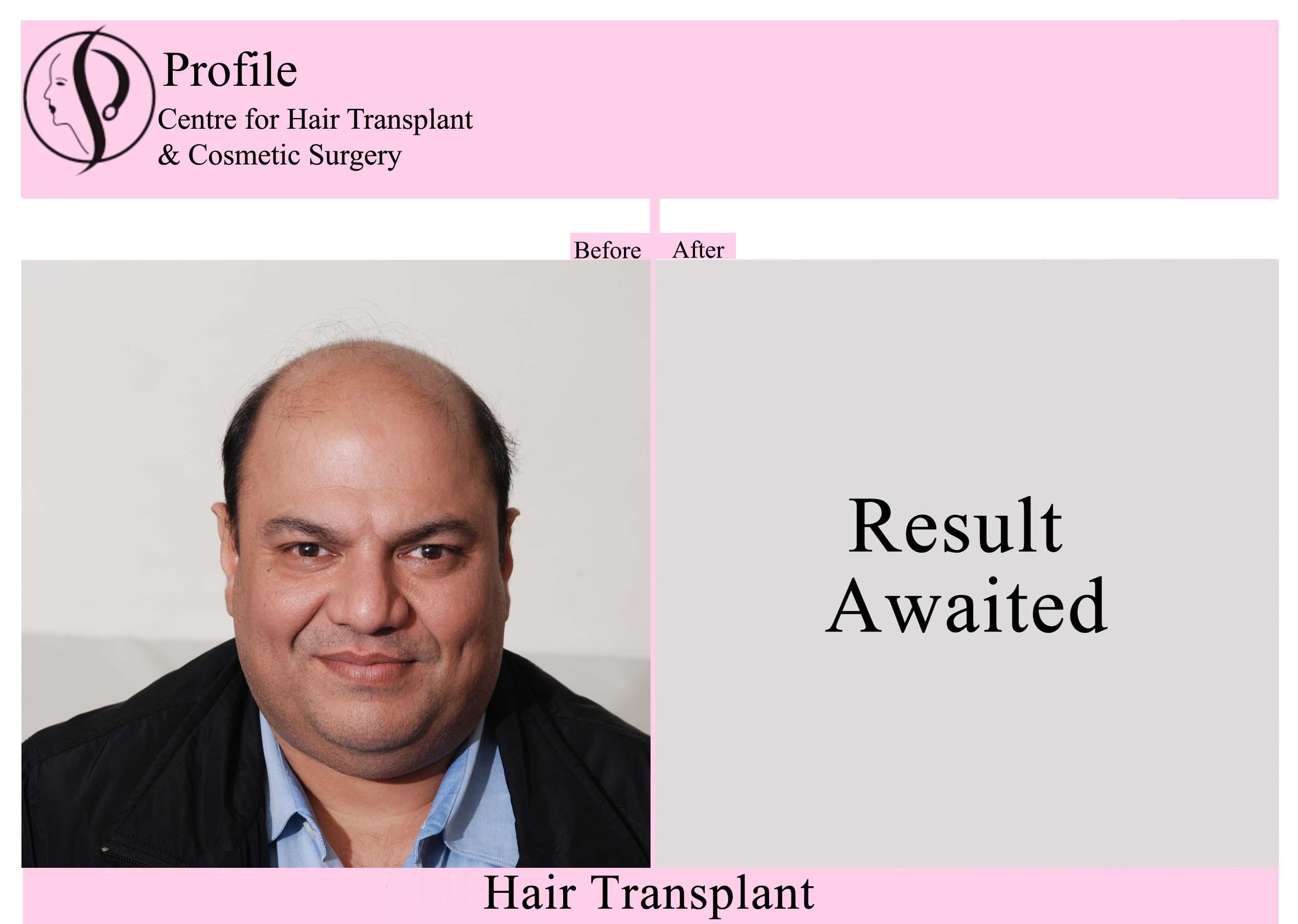 Dr. Rupesh Chaudhry