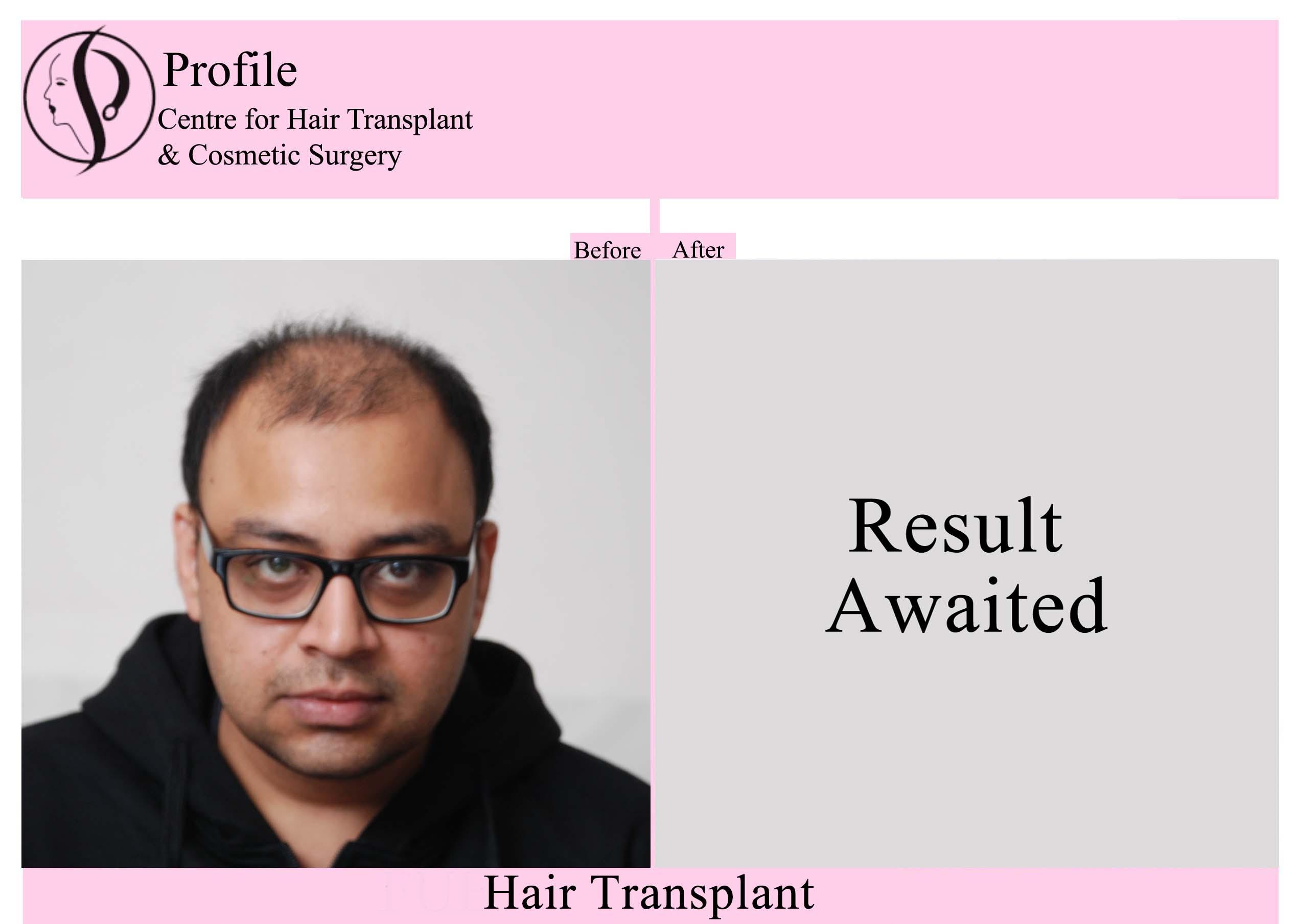 Dr.Vivek Vyas