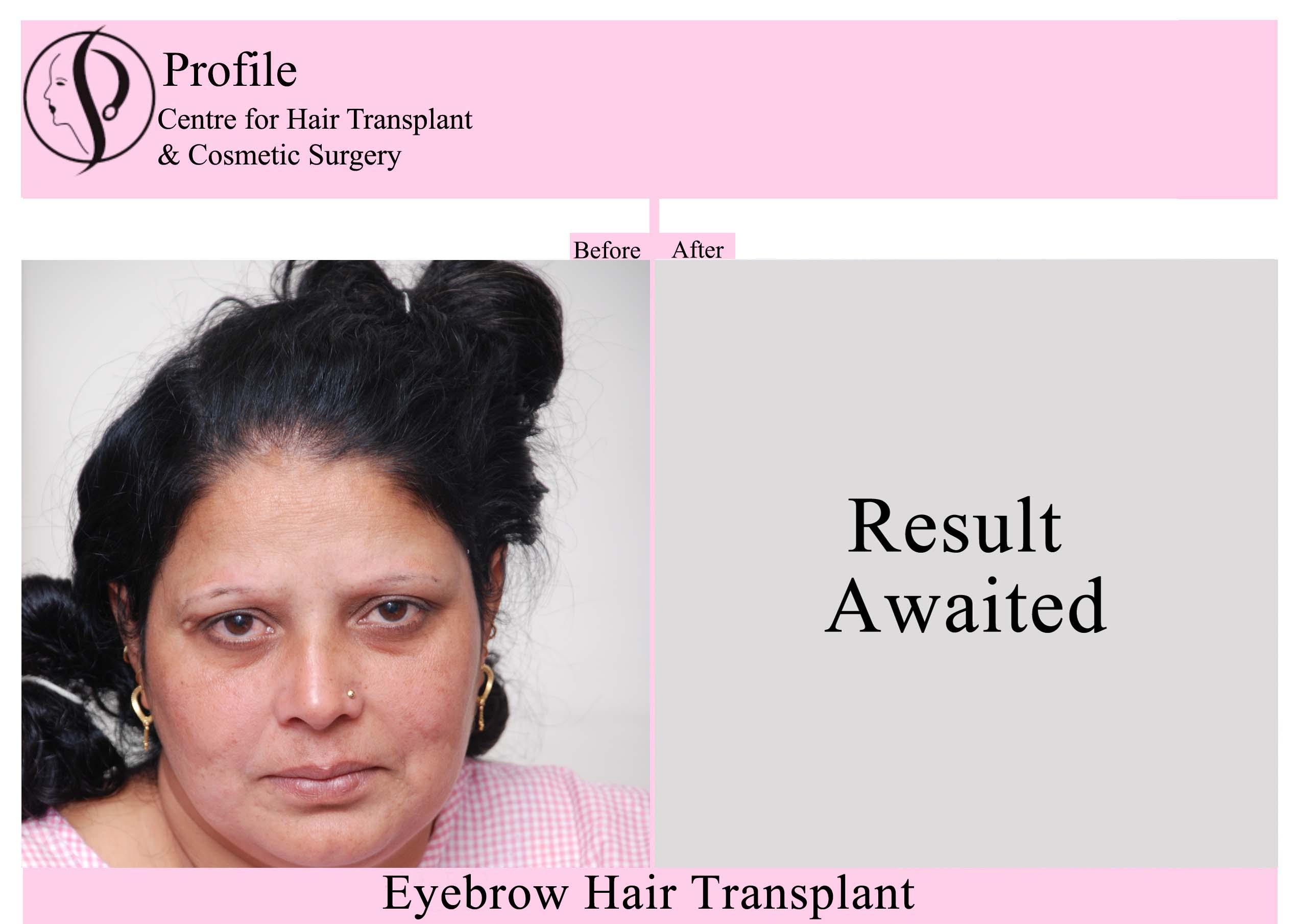 Eye Brow Hair Transplant 1