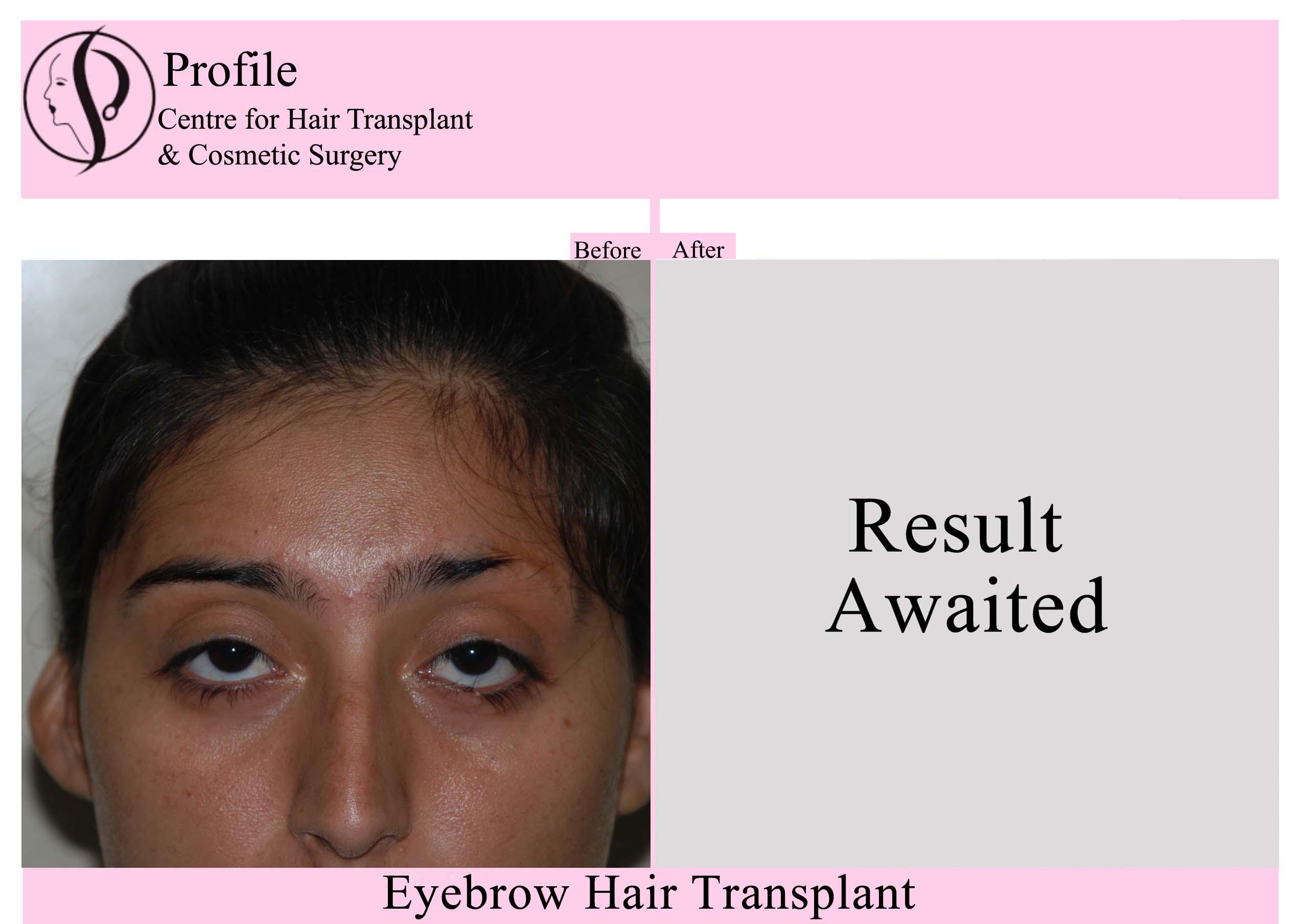 Eye Brow Hair Transplant 2