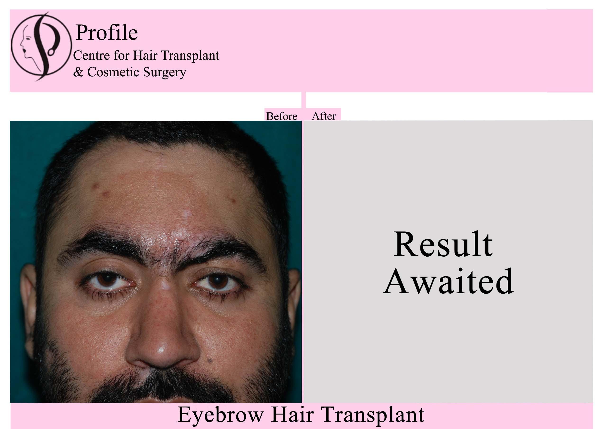 Eye Brow Hair Transplant 3