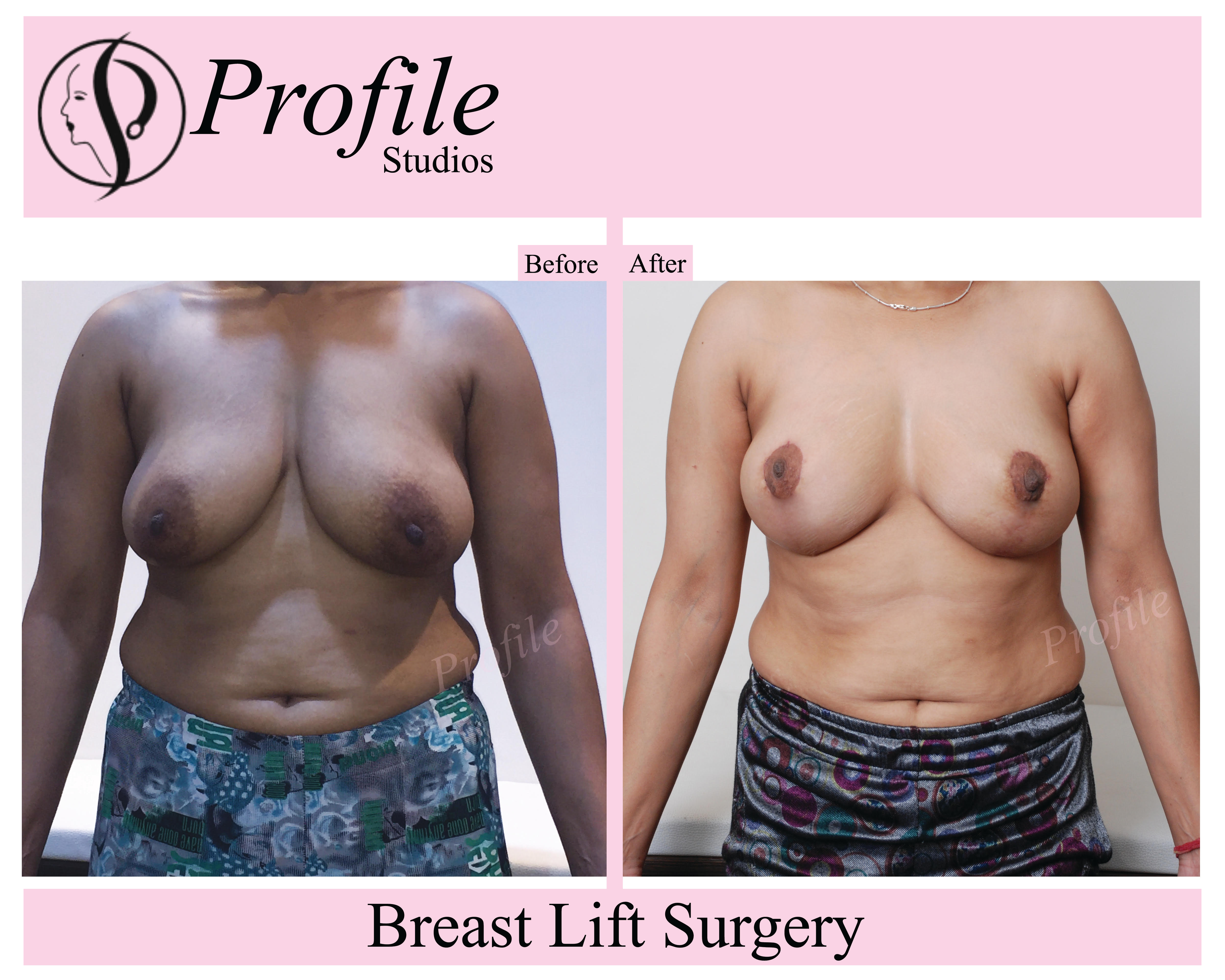 breast lift surgery1