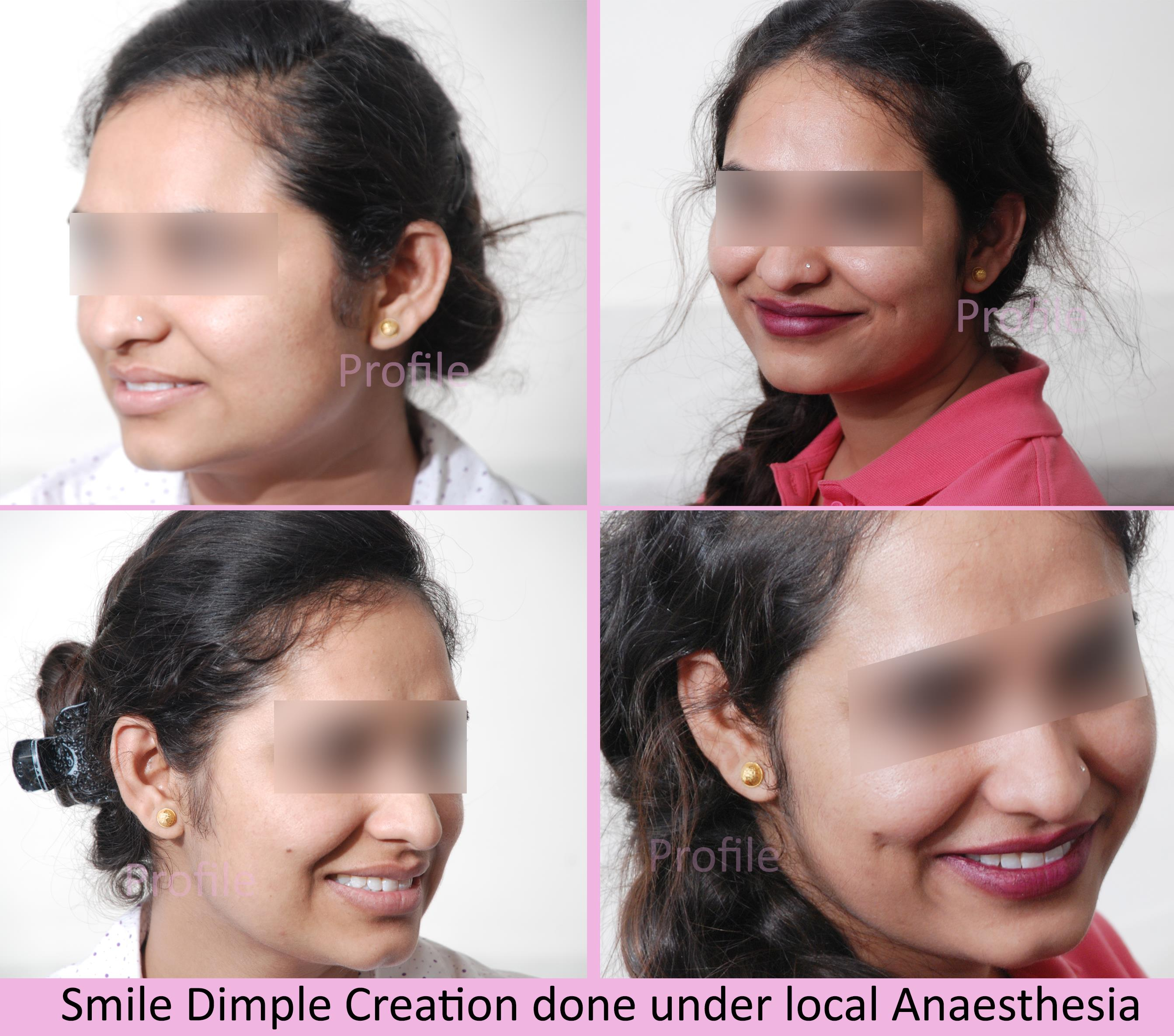 dimple creation