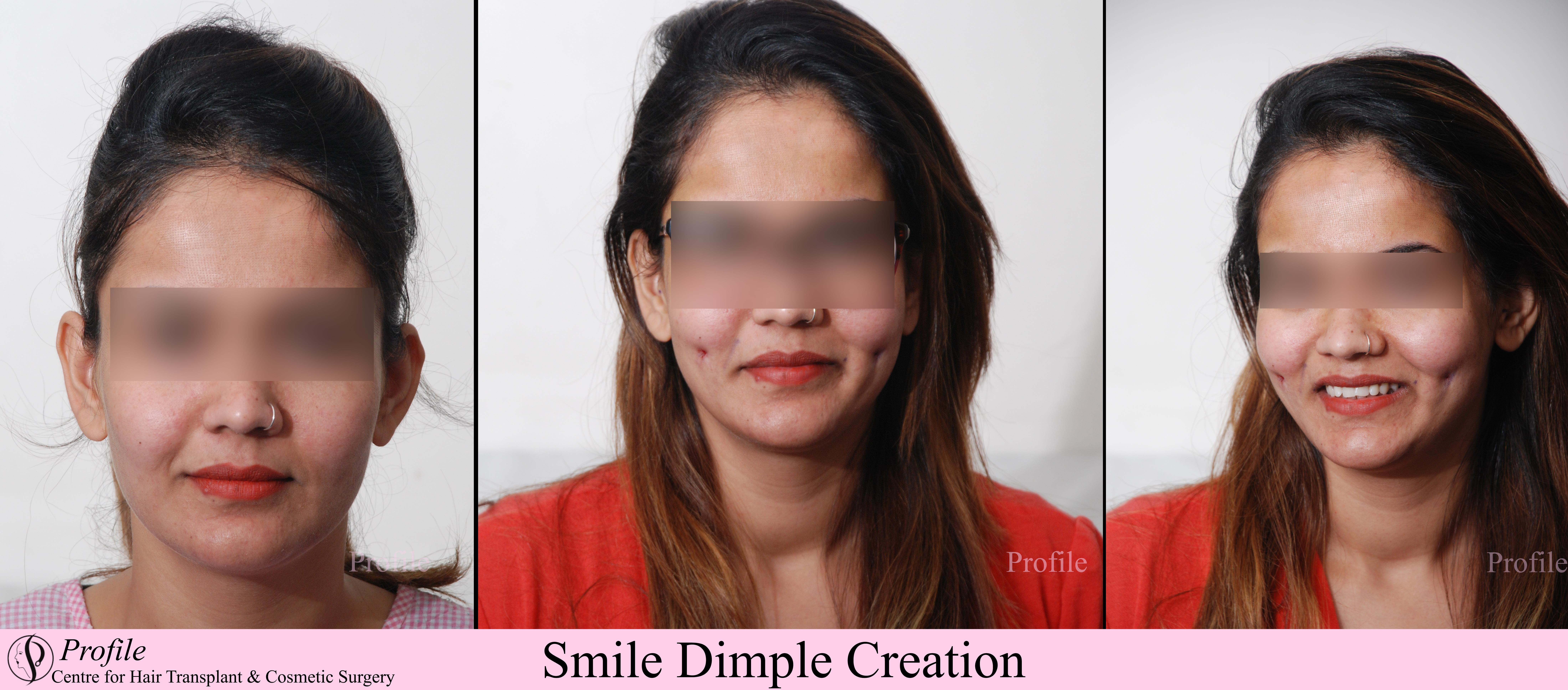 dimple creation1