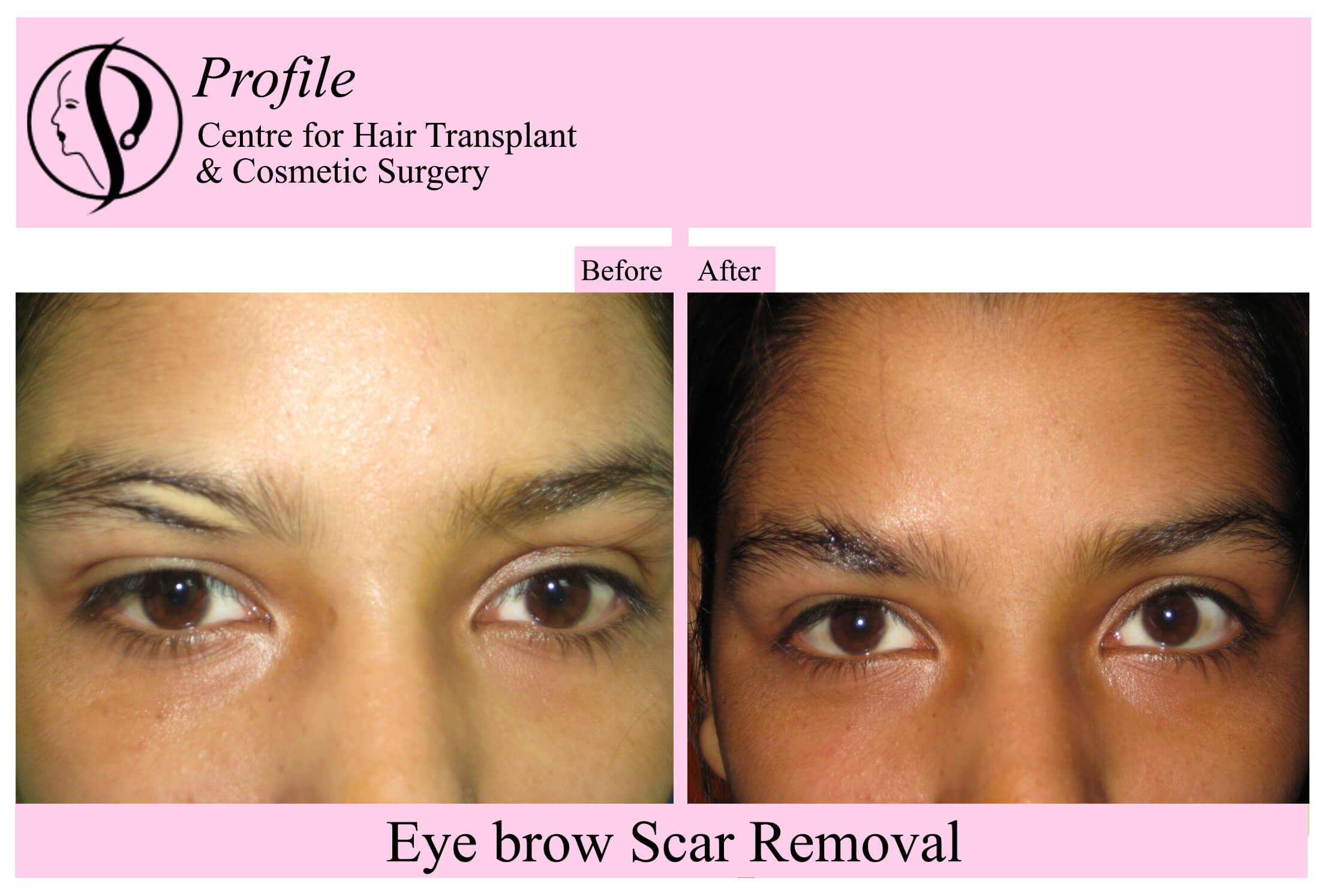 eye brow scar