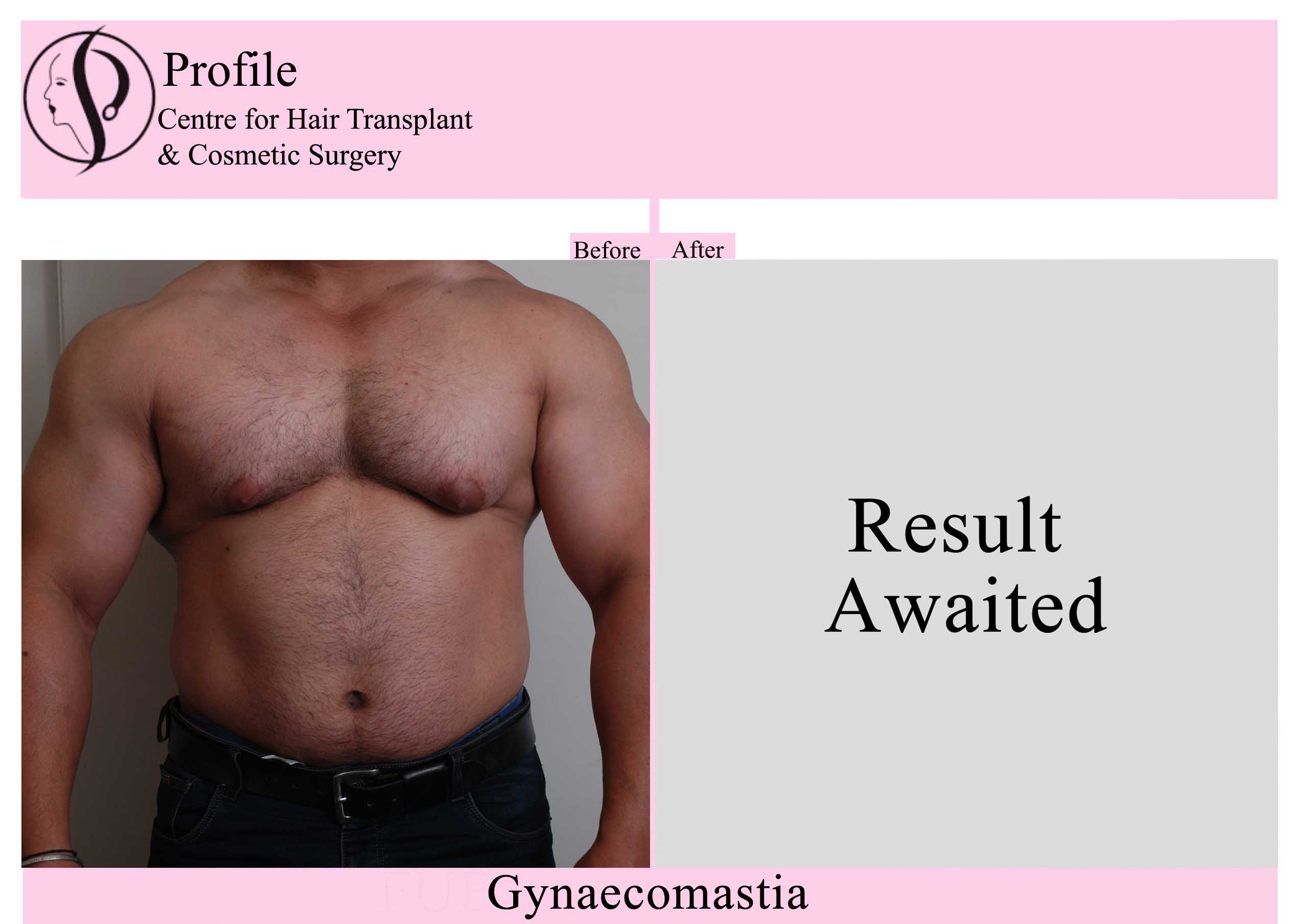 gynaecomastia11