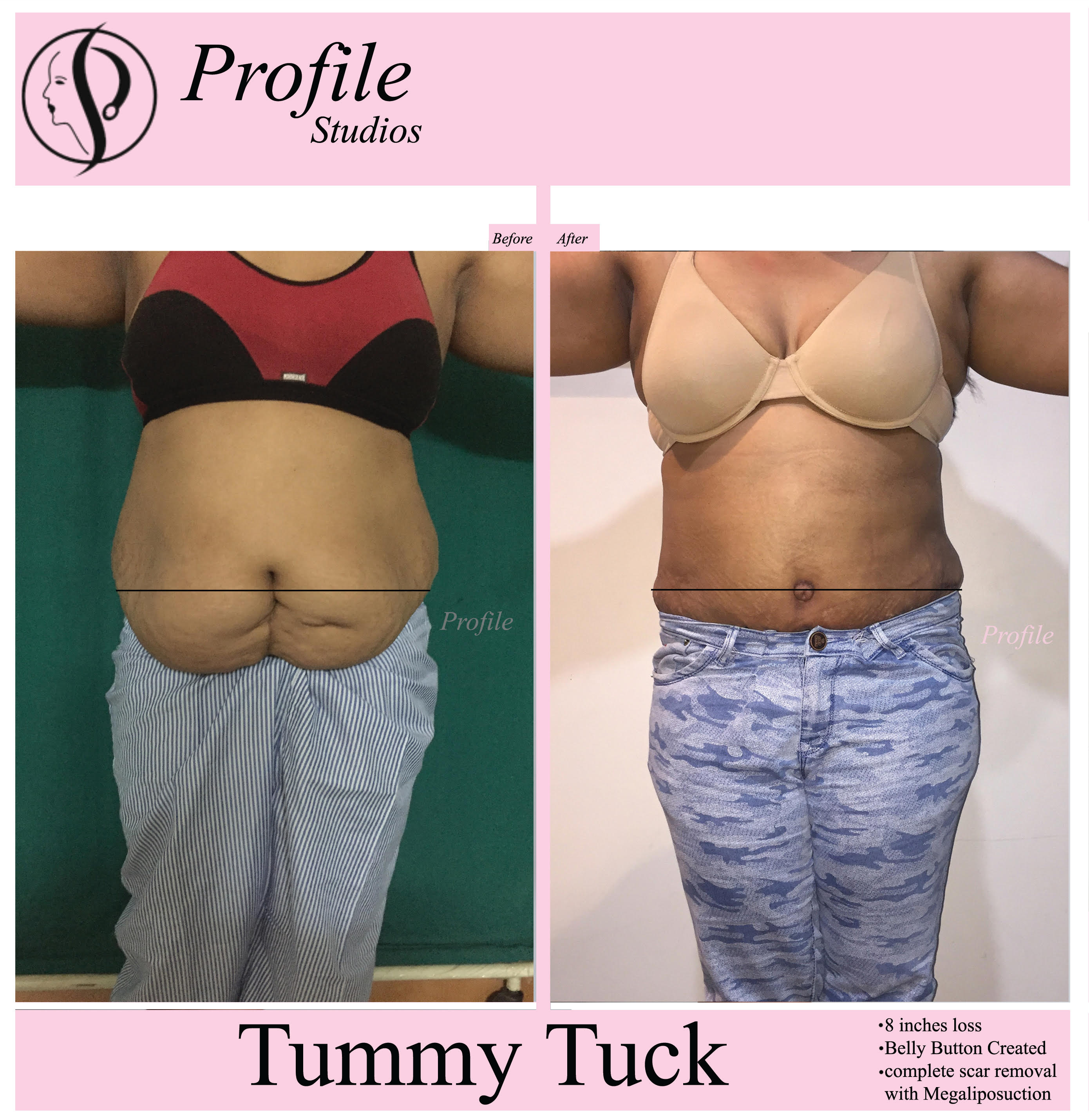 tummy_tuck1