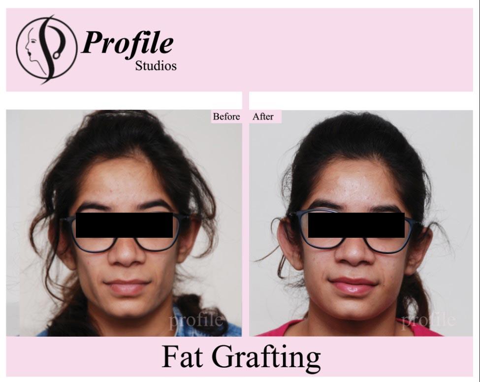 Fat-Grafting