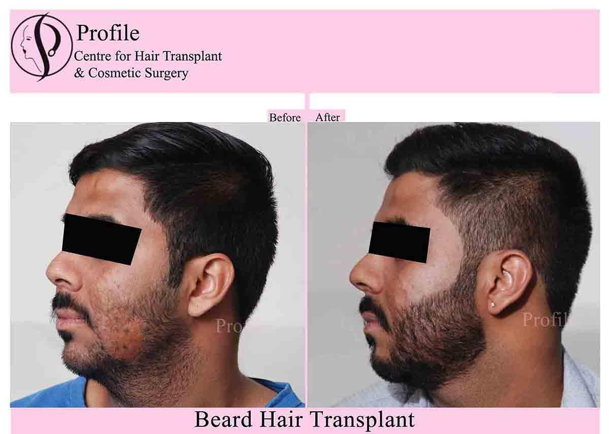 beardd-trans