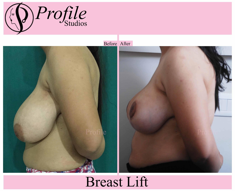 breast-lift-uma