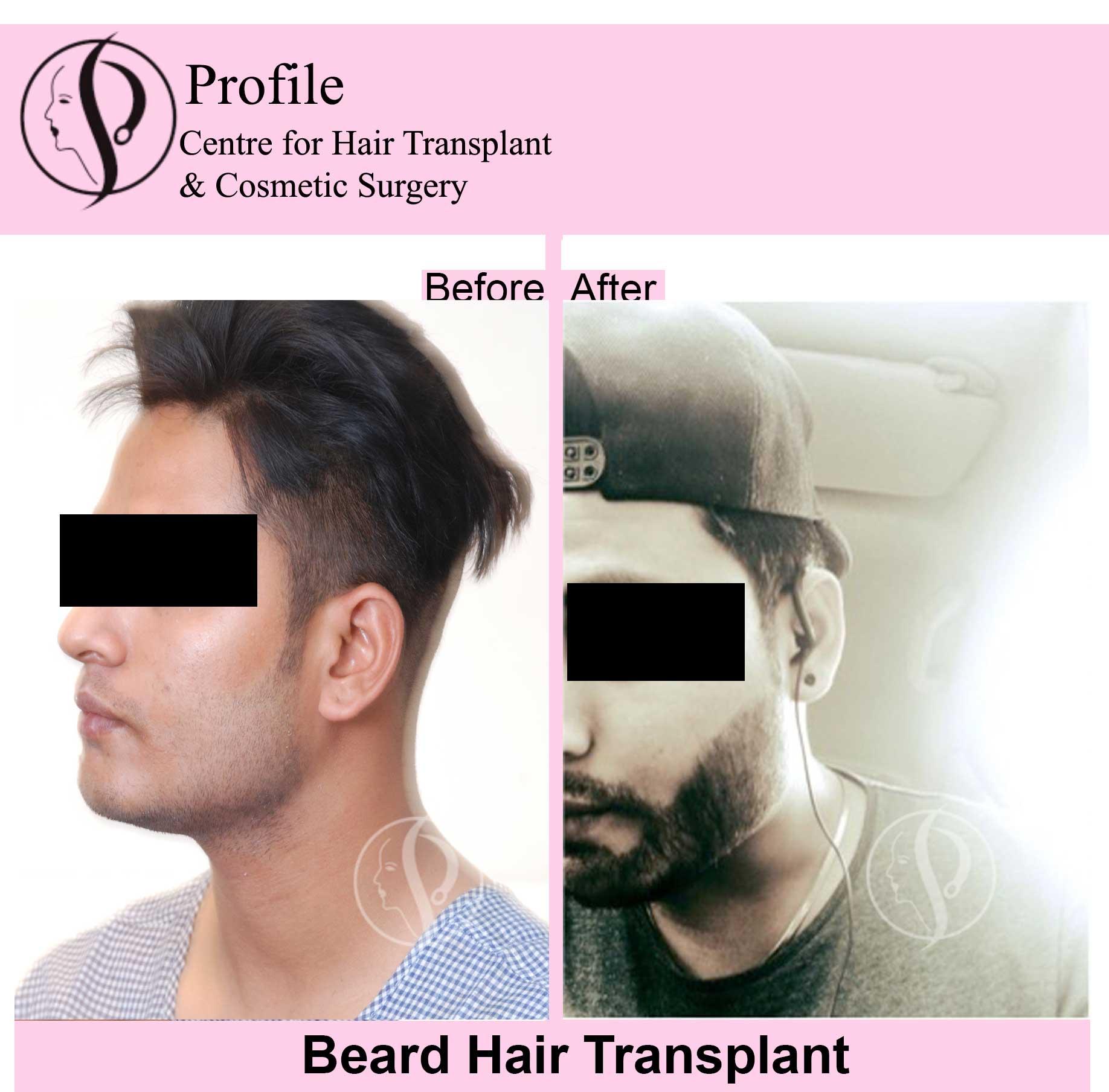 gp-beard-result11