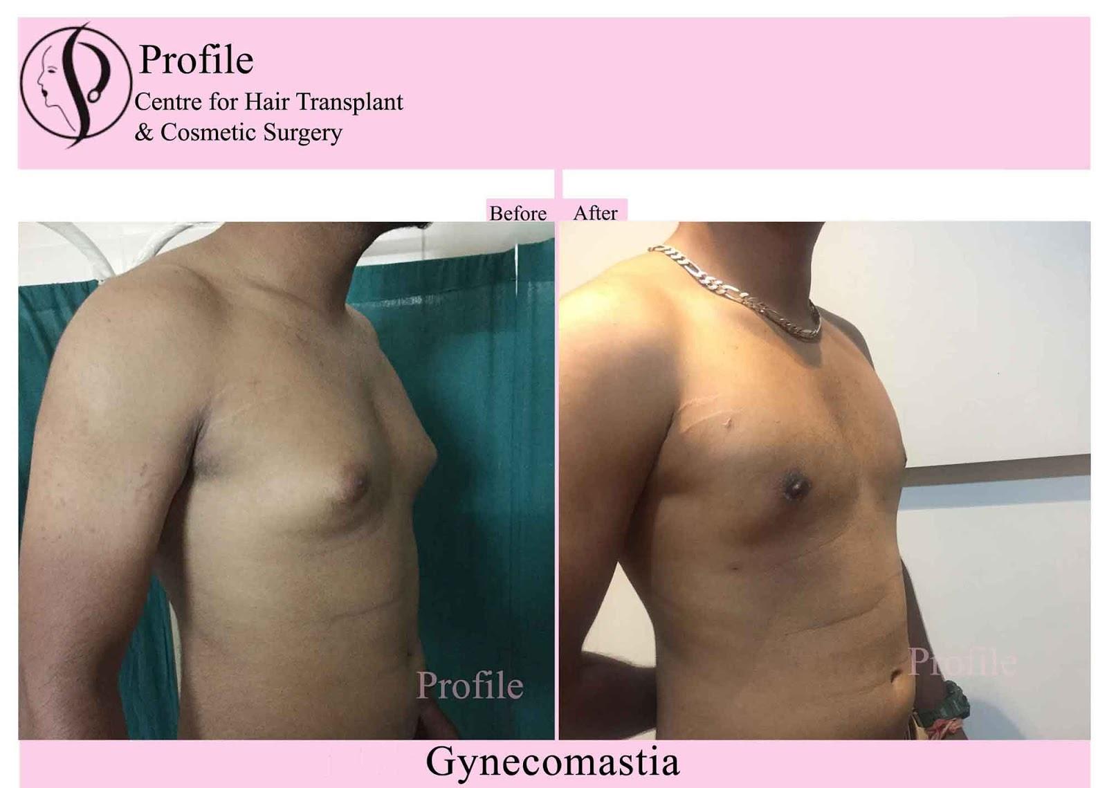Gynecomatia-Result (1)