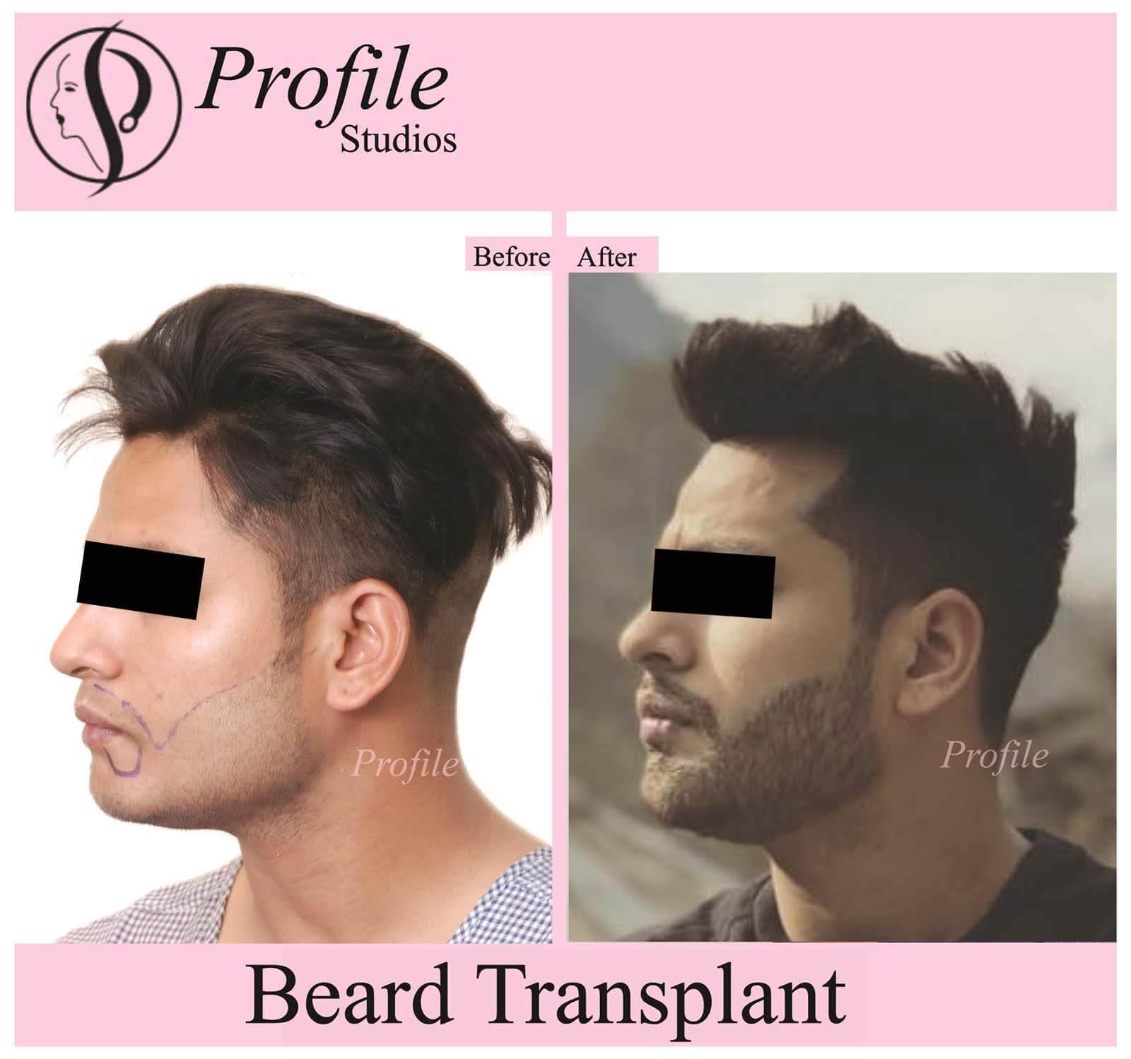 gurpreet beard11 (1)