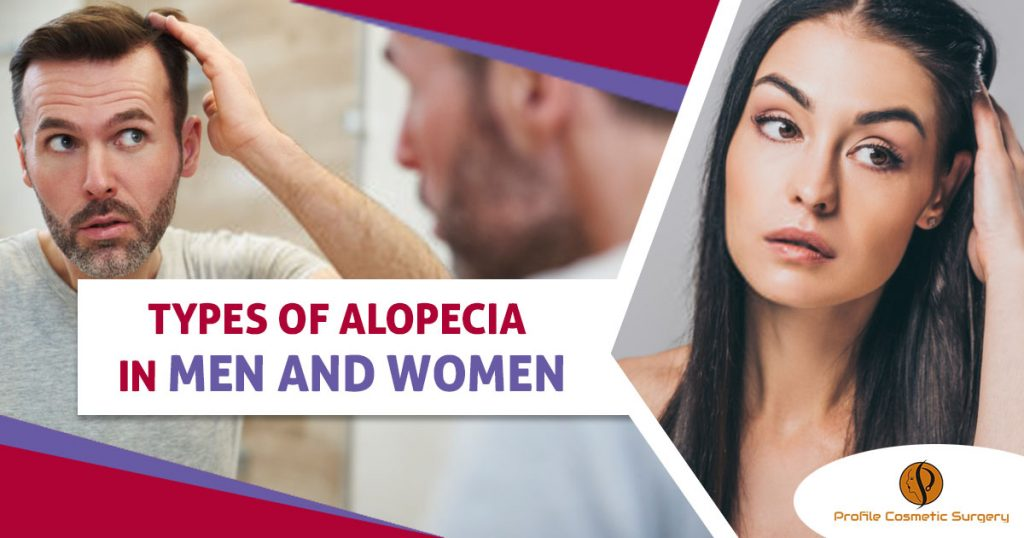 Types of alopecia in men and women